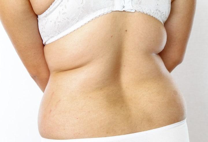 Bra for Back Fat